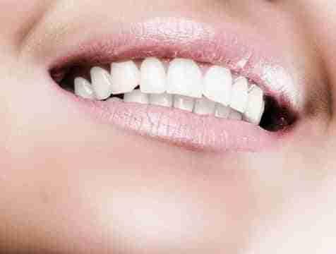 dientes blancos476 0