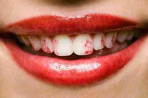 Trucos para evitar manchar los dientes con pintalabios